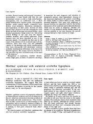 Moebius' syndrome with unilateral cerebellar hypoplasia