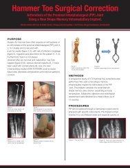 Hammer Toe Surgical Correction - Mmi-usa.com