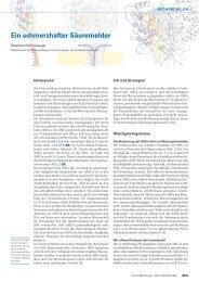 Ein schmerzhafter Säuremelder - Swiss Medical Forum