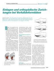 Einlagen u. orthopädische Zurichtungen bei Vorfußdeformitäten