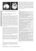 Parasagittales Meningeom bei einem 32500 ... - Alfred Czarnetzki - Seite 5