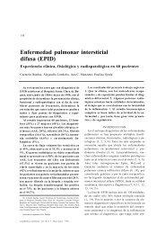 Enfermedad pulmonar intersticial medcram hipertensión