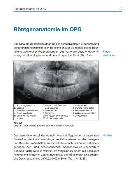 Röntgenanatomie im OPG - Spitta