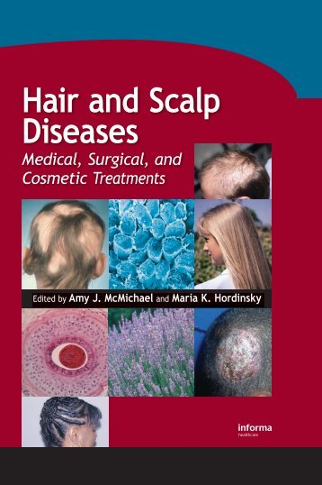 Hair and Scalp Diseases: Medical, Surgical, and Cosmetic ...