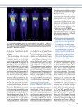 Nuklearmedizinische Diagnostik neuroendokriner Tumoren - Seite 4