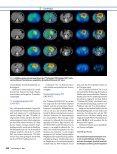 Nuklearmedizinische Diagnostik neuroendokriner Tumoren - Seite 7