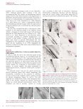 Doxorubicin-Induced Alopecia is Associated with Sebaceous Gland ... - Page 2