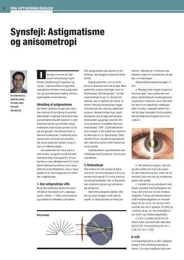 Synsfejl: Astigmatisme og anisometropi