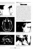 ARCHIVES - Rhinoplasty New York - Page 3