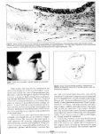ARCHIVES - Rhinoplasty New York - Page 4