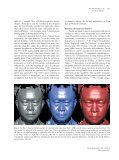 Facial Asymmetry: Etiology, Evaluation, and Management - Page 2
