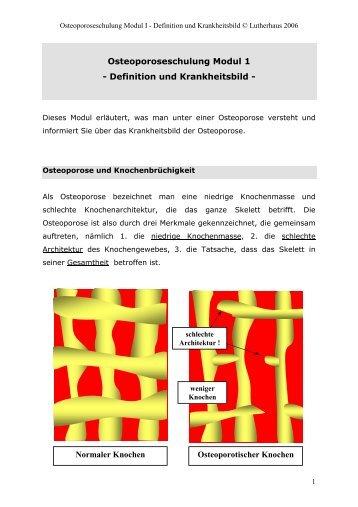 OSTEOPOROSE_SCHULUNG I: Definition und ... - OSTAK