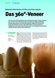 Das 360°-Veneer