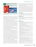 Kyphoplasty for Patients With Multiple Myeloma ... - Klinikum Ansbach - Page 5