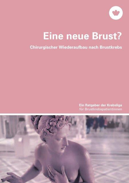 Eine neue Brust? - Krebsliga Schweiz